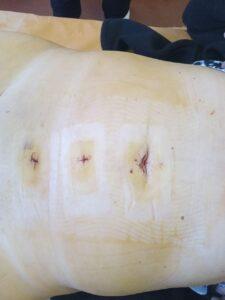 удаление грыжи герниопластика