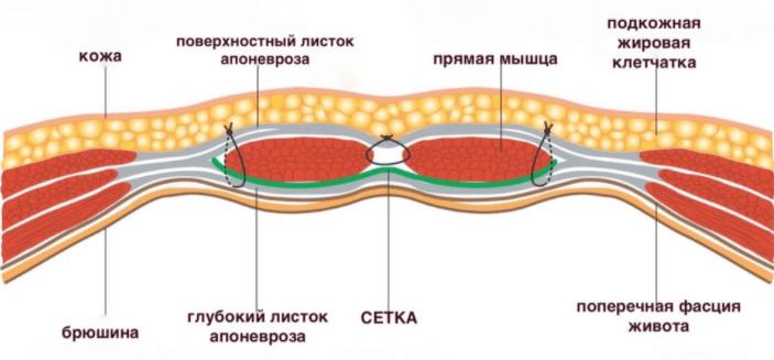 pupochnaya gryzha