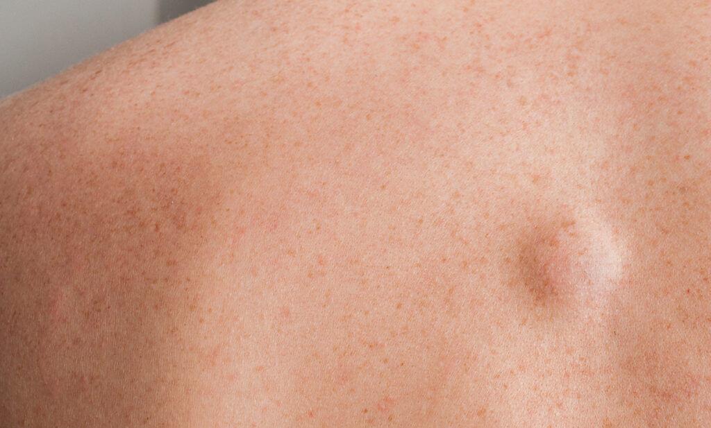 lipoma na spine
