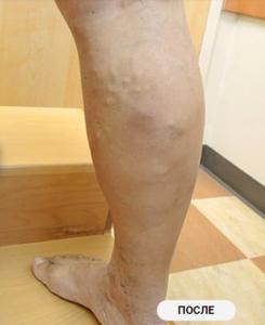 удаление варикоза